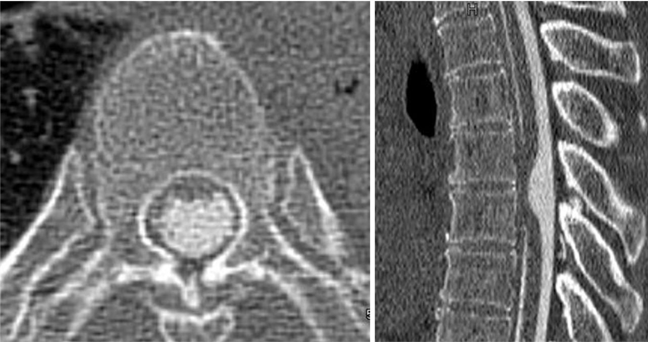 Idiopathic spinal cord...