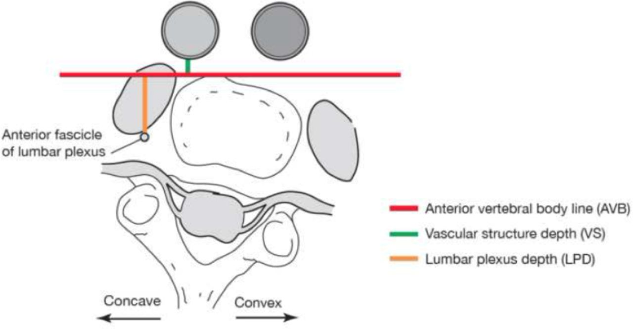 Anatomical Modifications during the Lateral Transpsoas Approach to ...