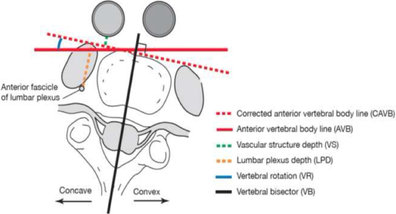 Anatomical Modifications During The Lateral Transpsoas Approach To