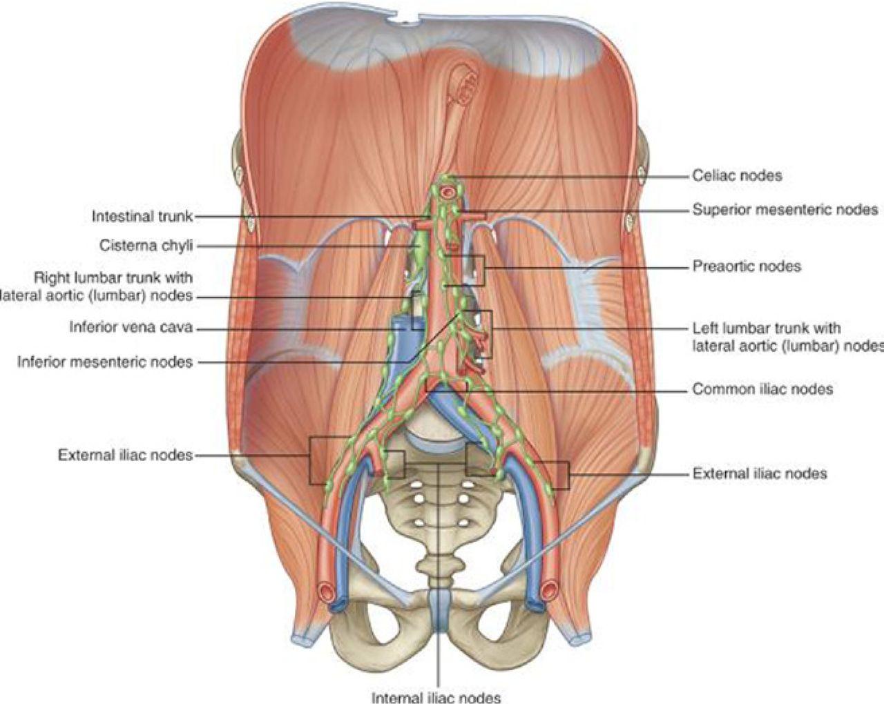 Retroperitoneal Lymphocele After Lumbar Total Disc Replacement A