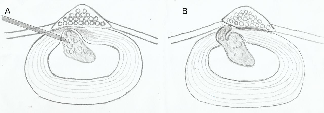 Annulo-nucleoplasty using Disc-FX in the management of